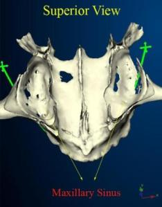 The maxillary sinus on a CT scan 3-D image