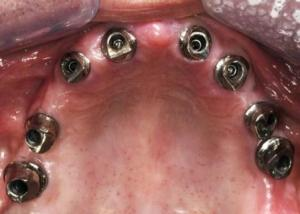 8 implants in the upper jaw with abutments connected